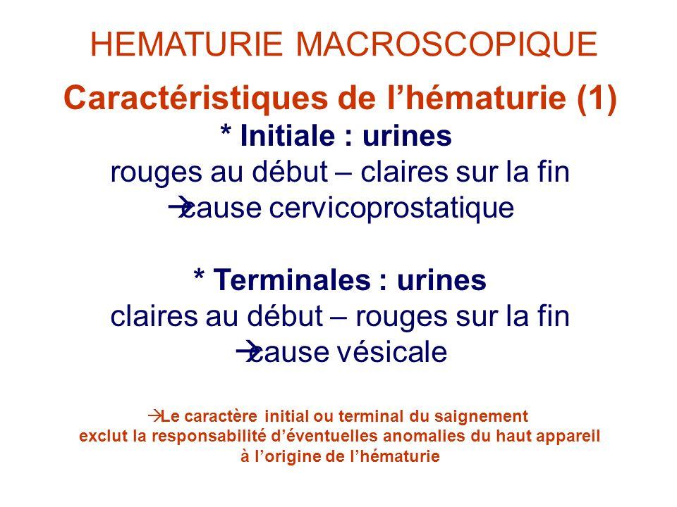 HEMATURIE MACROSCOPIQUE