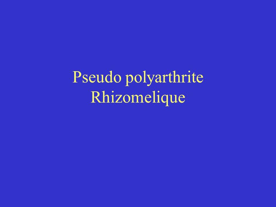 Pseudo polyarthrite Rhizomelique