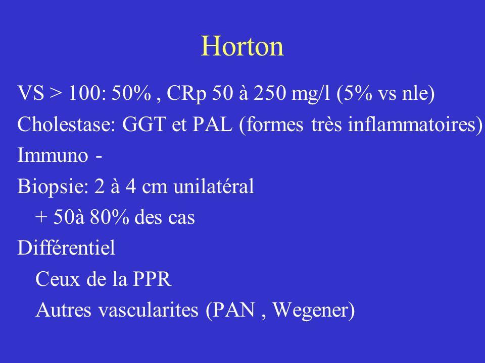 Horton VS > 100: 50% , CRp 50 à 250 mg/l (5% vs nle)
