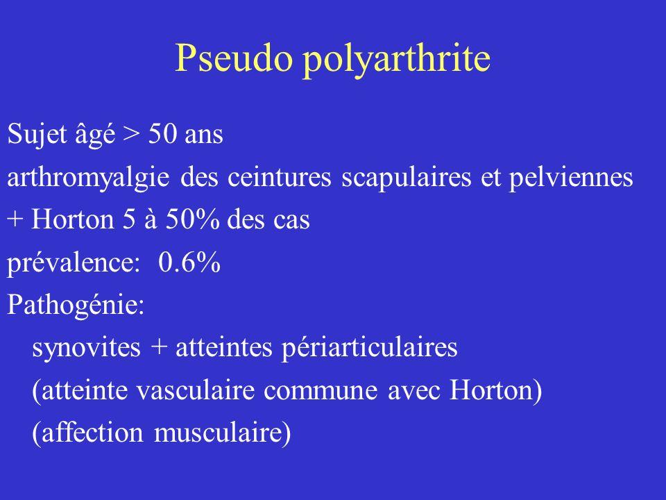 Pseudo polyarthrite Sujet âgé > 50 ans