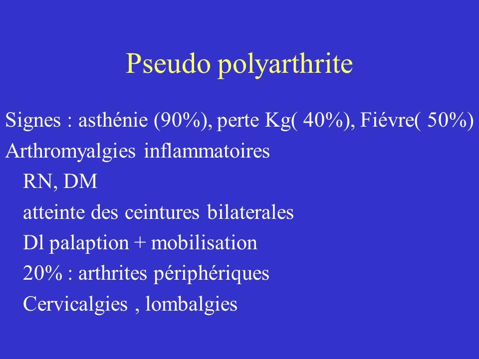 Pseudo polyarthrite Signes : asthénie (90%), perte Kg( 40%), Fiévre( 50%) Arthromyalgies inflammatoires.