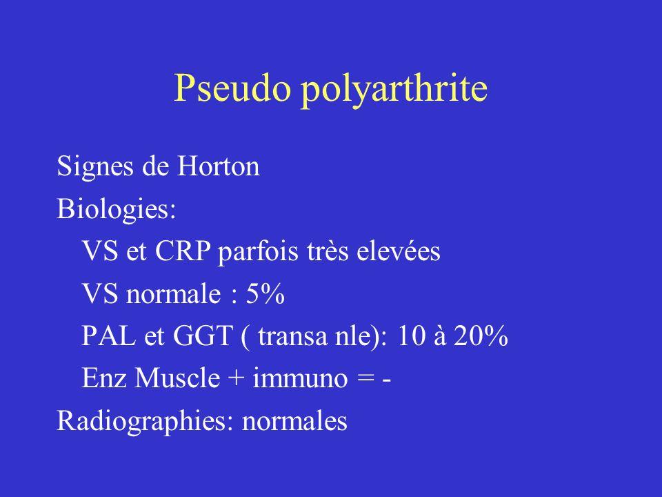 Pseudo polyarthrite Signes de Horton Biologies: