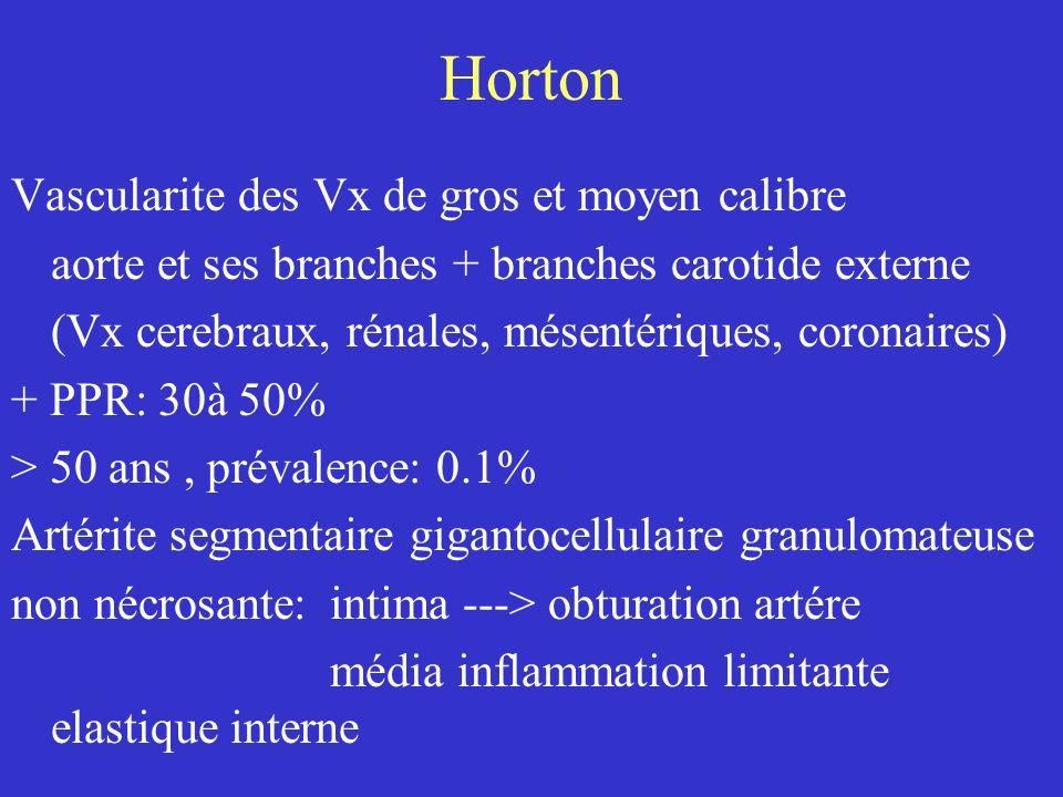 Horton Vascularite des Vx de gros et moyen calibre
