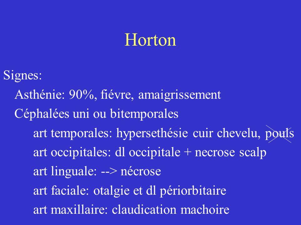 Horton Signes: Asthénie: 90%, fiévre, amaigrissement