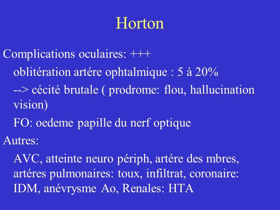 Horton Complications oculaires: +++