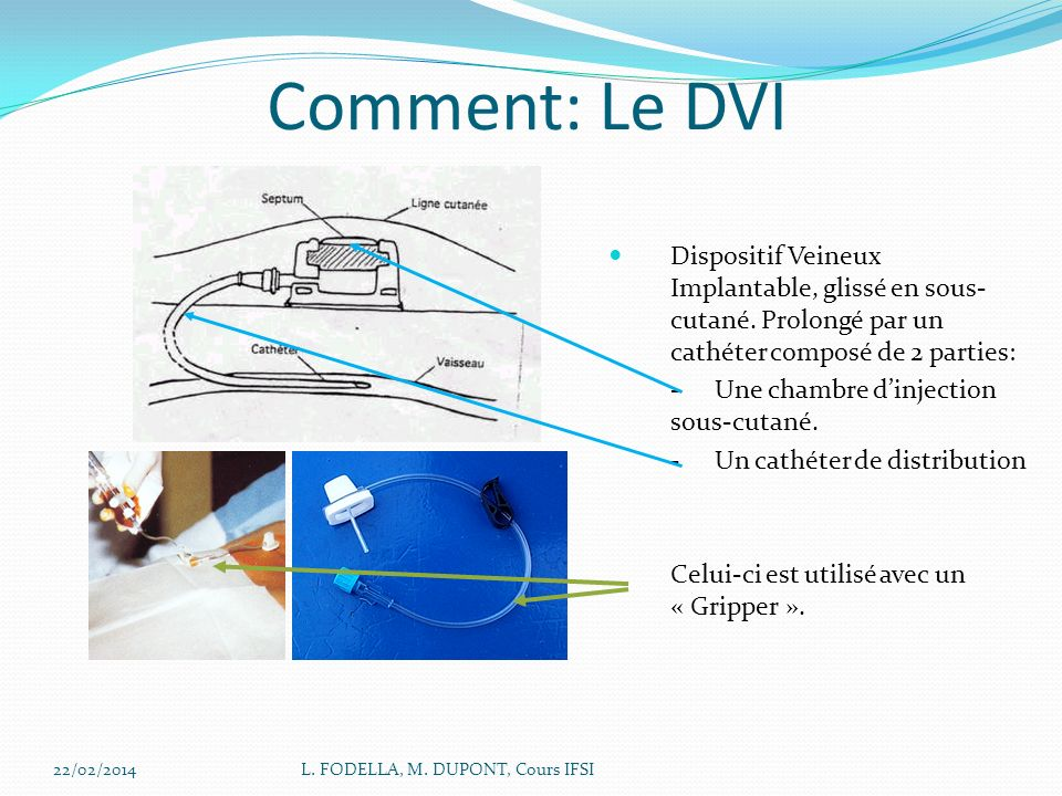 Comment: Le DVI Dispositif Veineux Implantable, glissé en sous-cutané. Prolongé par un cathéter composé de 2 parties: