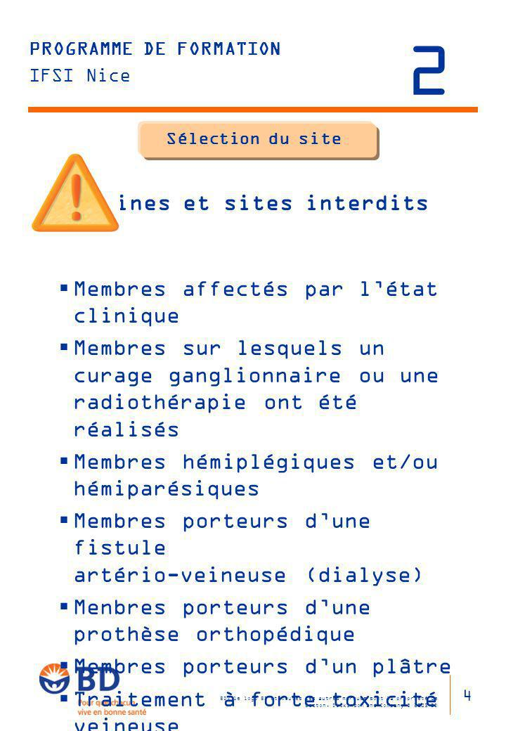 Sélection du site Veines et sites interdits