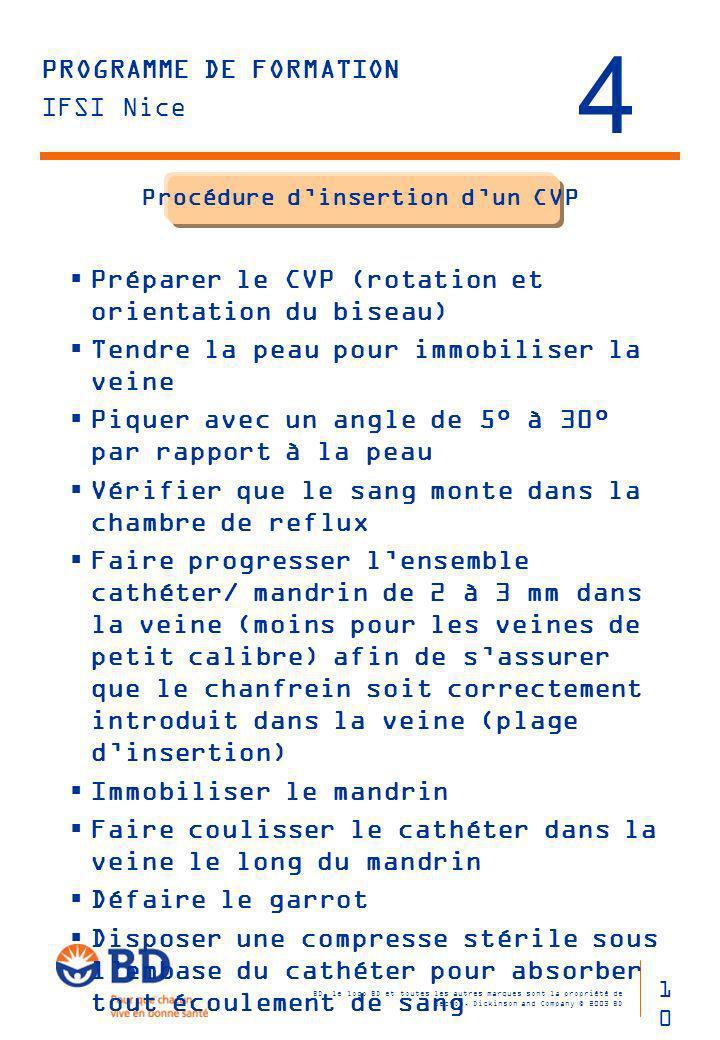 Procédure d'insertion d'un CVP