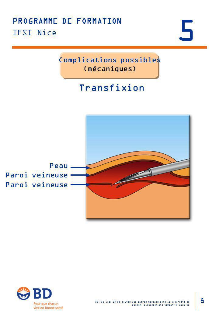 Complications possibles (mécaniques) Transfixion