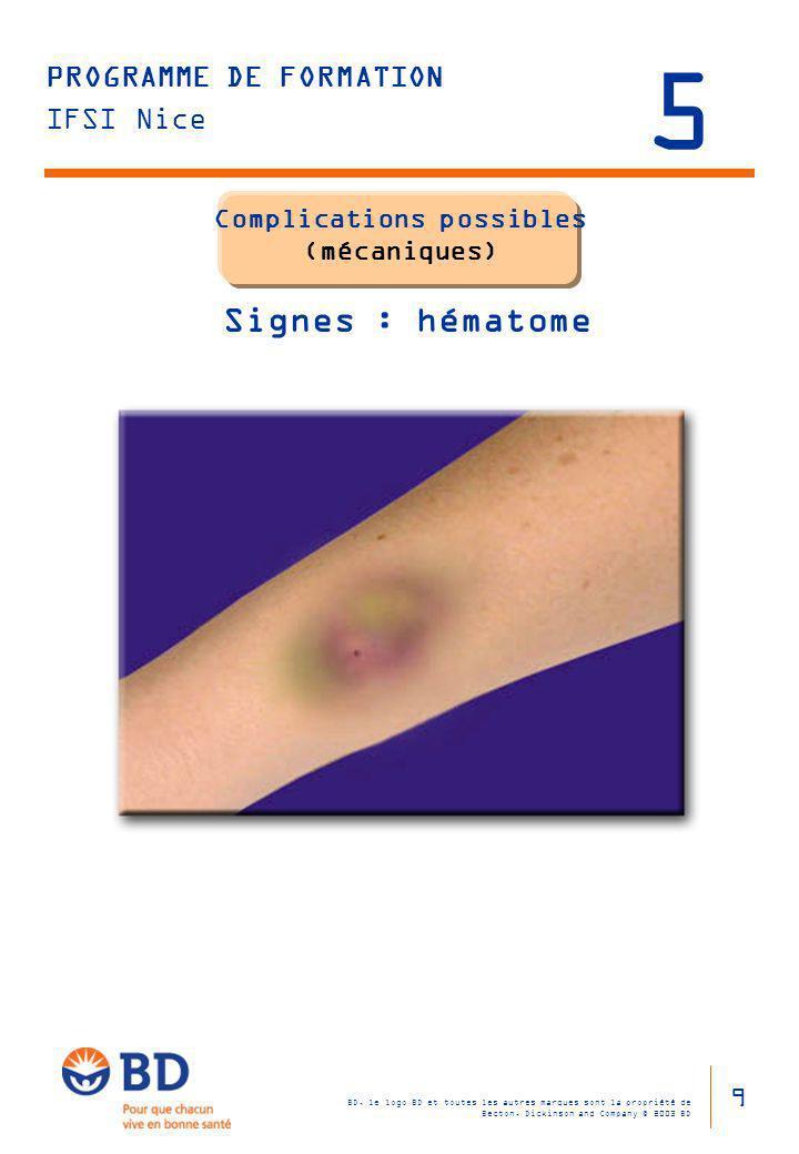 Complications possibles (mécaniques) Signes : hématome