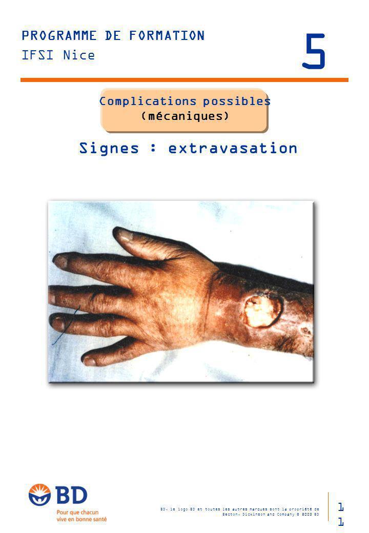 Complications possibles (mécaniques) Signes : extravasation