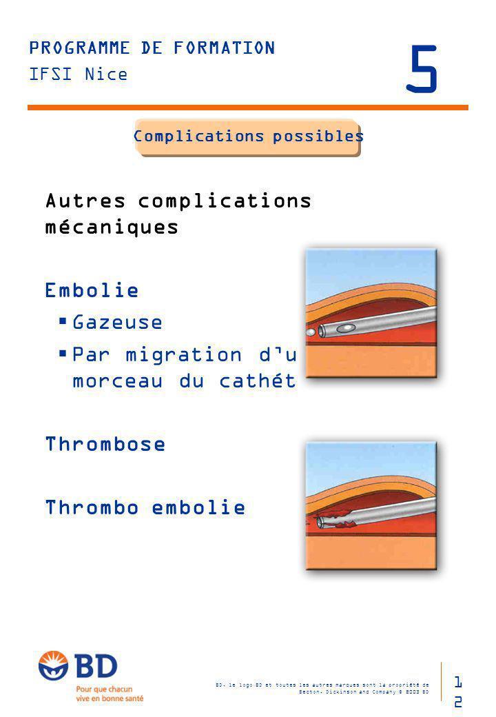 Complications possibles