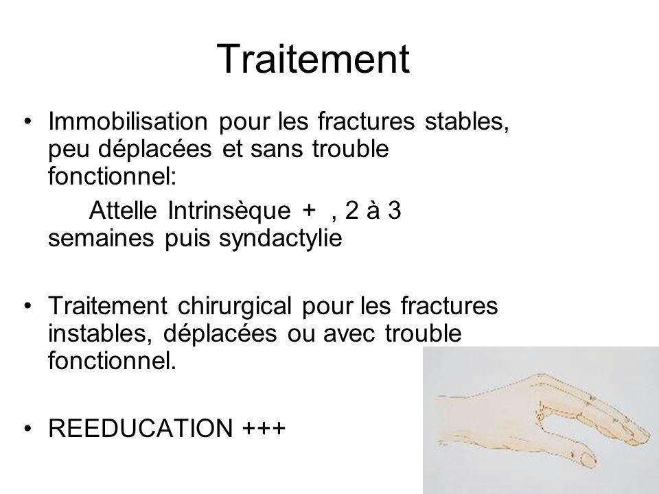 TraitementImmobilisation pour les fractures stables, peu déplacées et sans trouble fonctionnel: