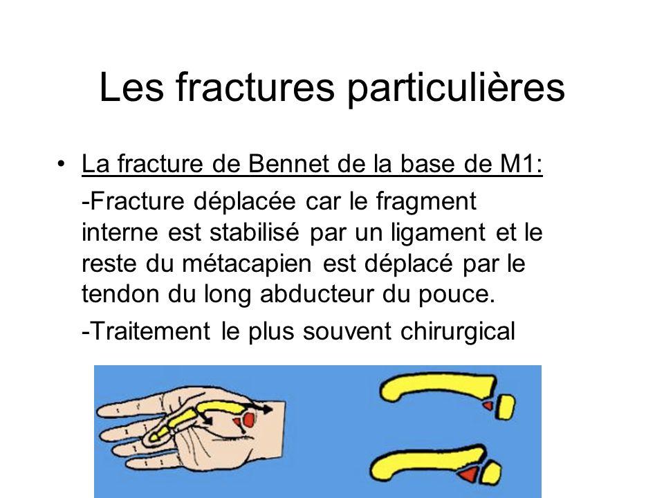 Les fractures particulières