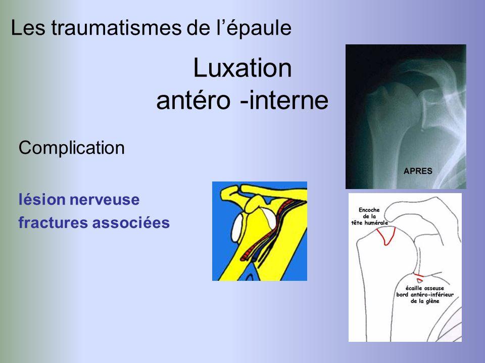 Luxation antéro -interne Les traumatismes de l'épaule Complication