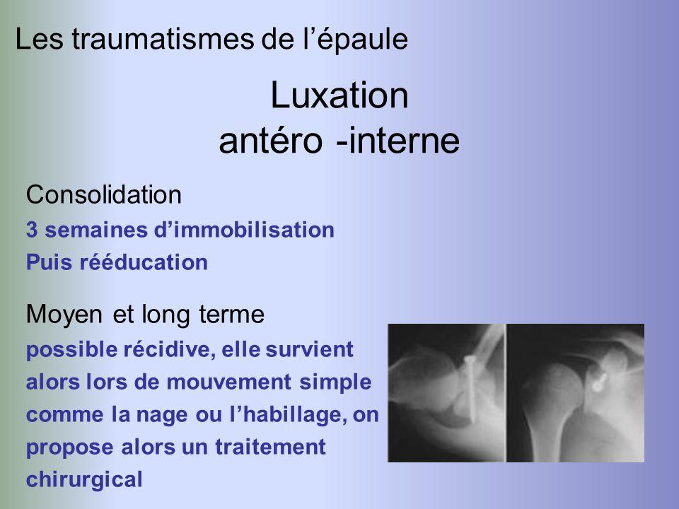 Luxation antéro -interne Les traumatismes de l'épaule Consolidation