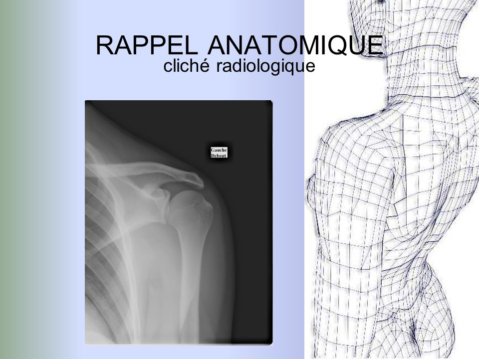 RAPPEL ANATOMIQUE cliché radiologique Clavicule