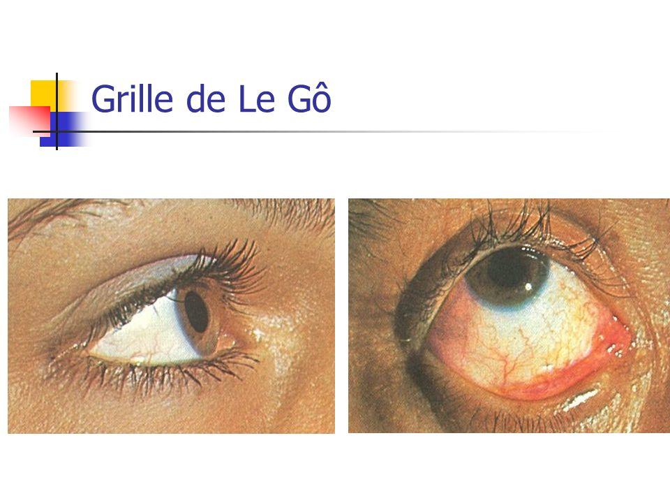 Grille de Le Gô