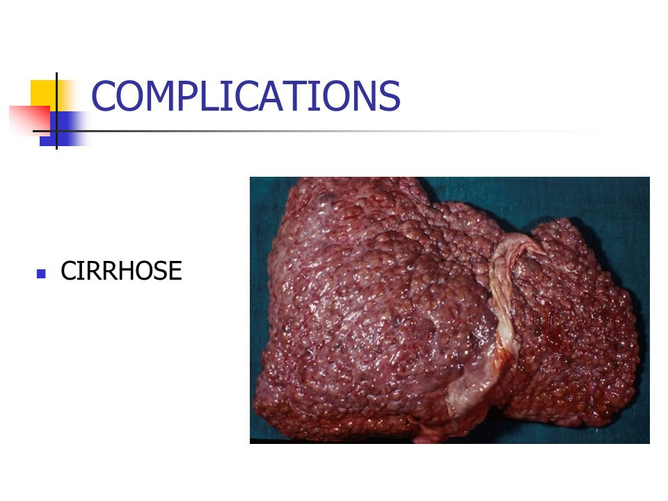 COMPLICATIONS CIRRHOSE