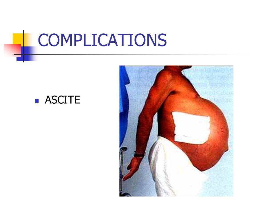 COMPLICATIONS ASCITE