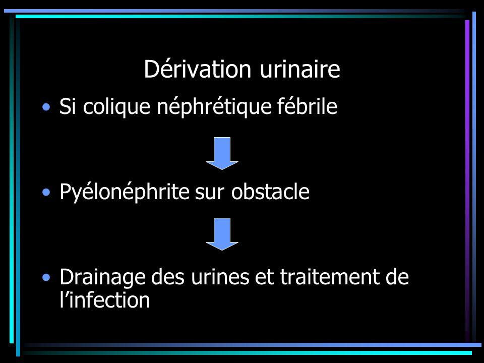Dérivation urinaire Si colique néphrétique fébrile