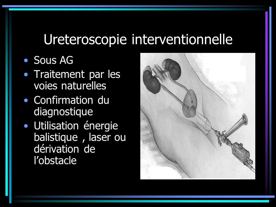 Ureteroscopie interventionnelle