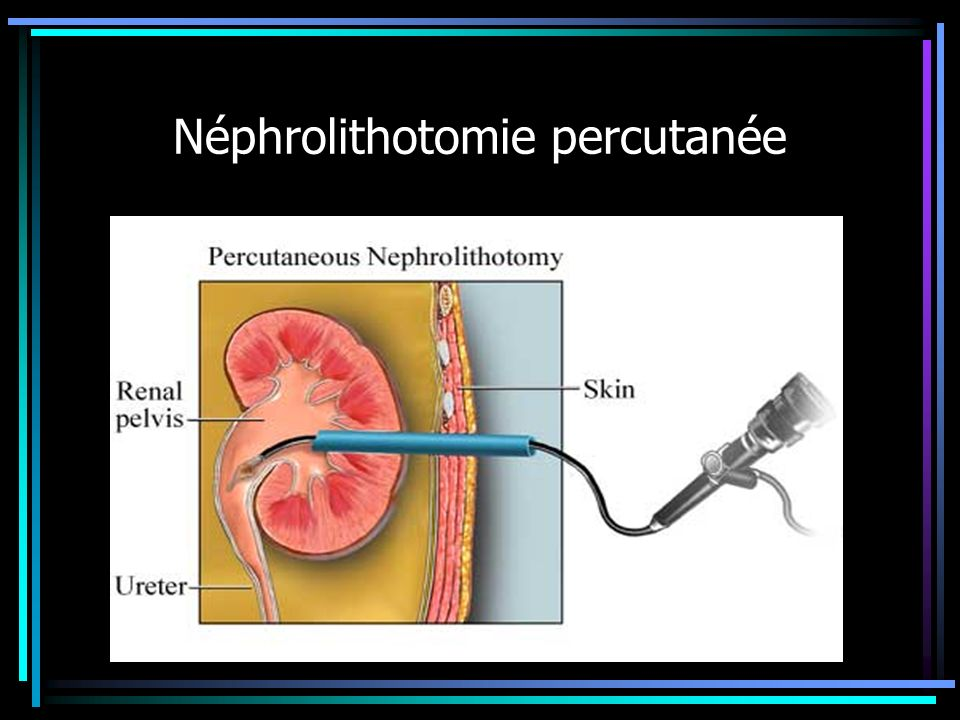 Néphrolithotomie percutanée