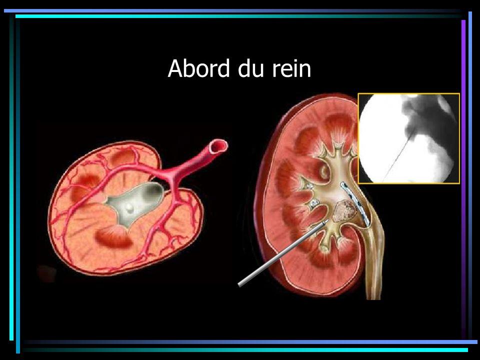 Abord du rein Il existe deux systèmes vasculaires antérieurs et postérieurs.