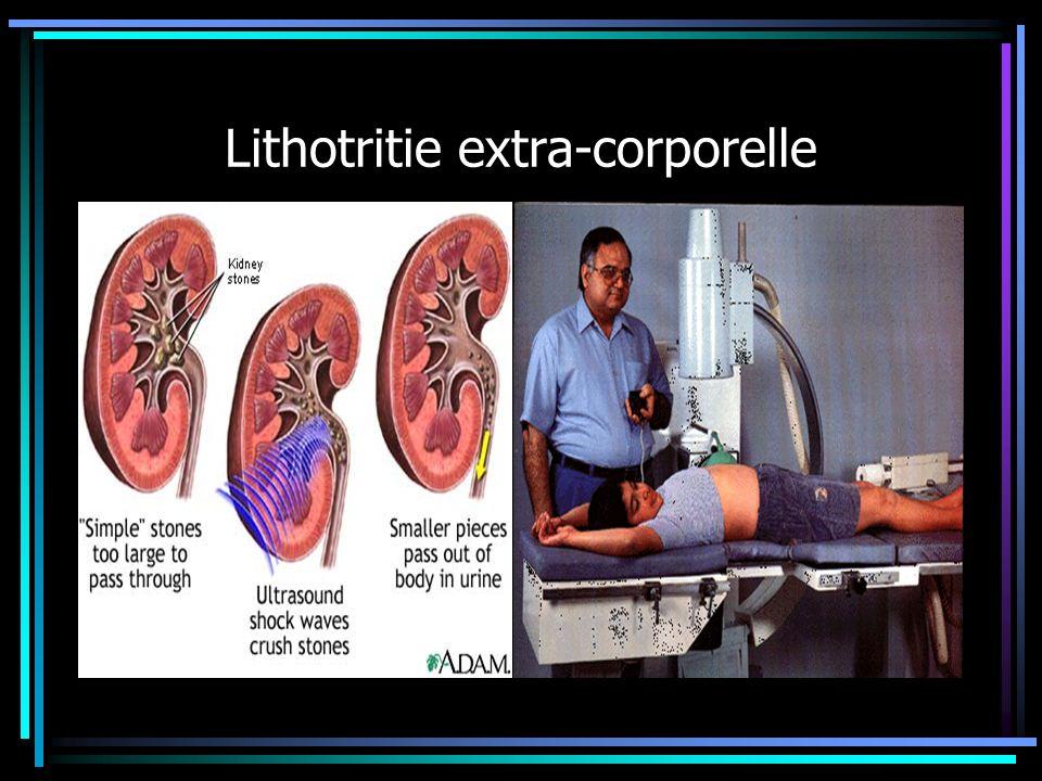 Lithotritie extra-corporelle