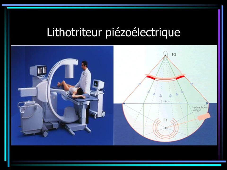 Lithotriteur piézoélectrique