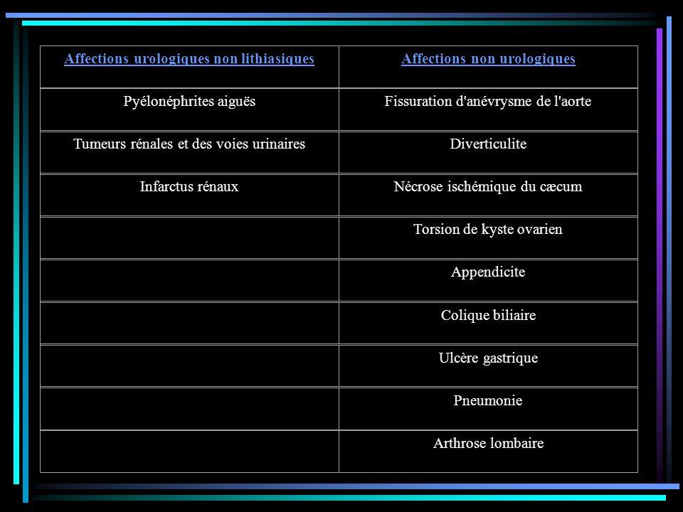 Affections urologiques non lithiasiques Affections non urologiques