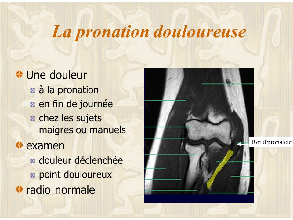 La pronation douloureuse