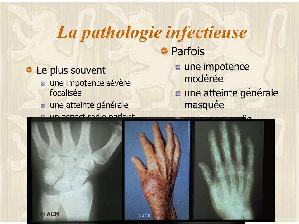 La pathologie infectieuse