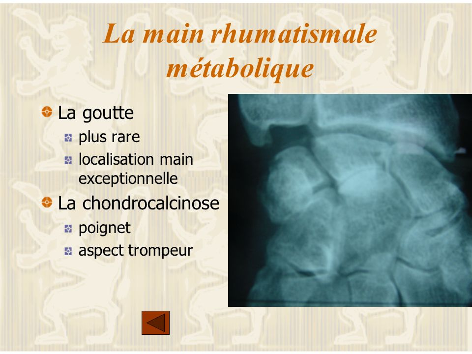 La main rhumatismale métabolique
