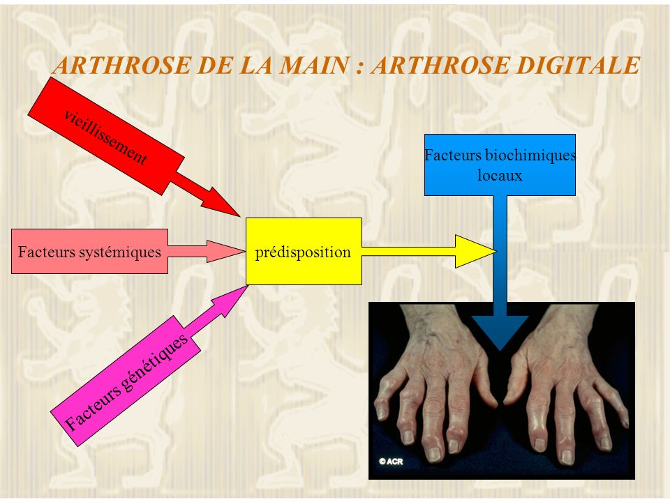 ARTHROSE DE LA MAIN : ARTHROSE DIGITALE