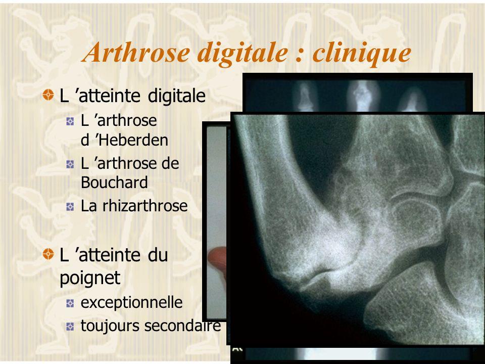 Arthrose digitale : clinique