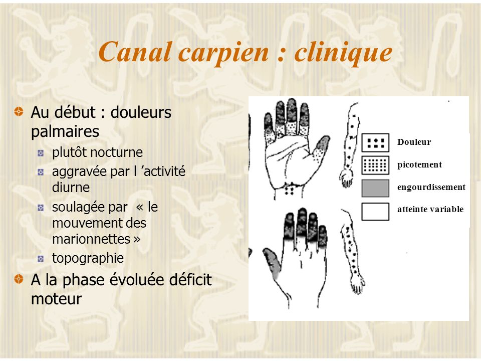 Canal carpien : clinique