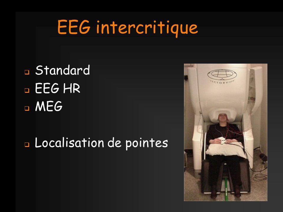 EEG intercritique Standard EEG HR MEG Localisation de pointes