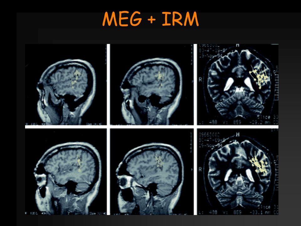 MEG + IRM