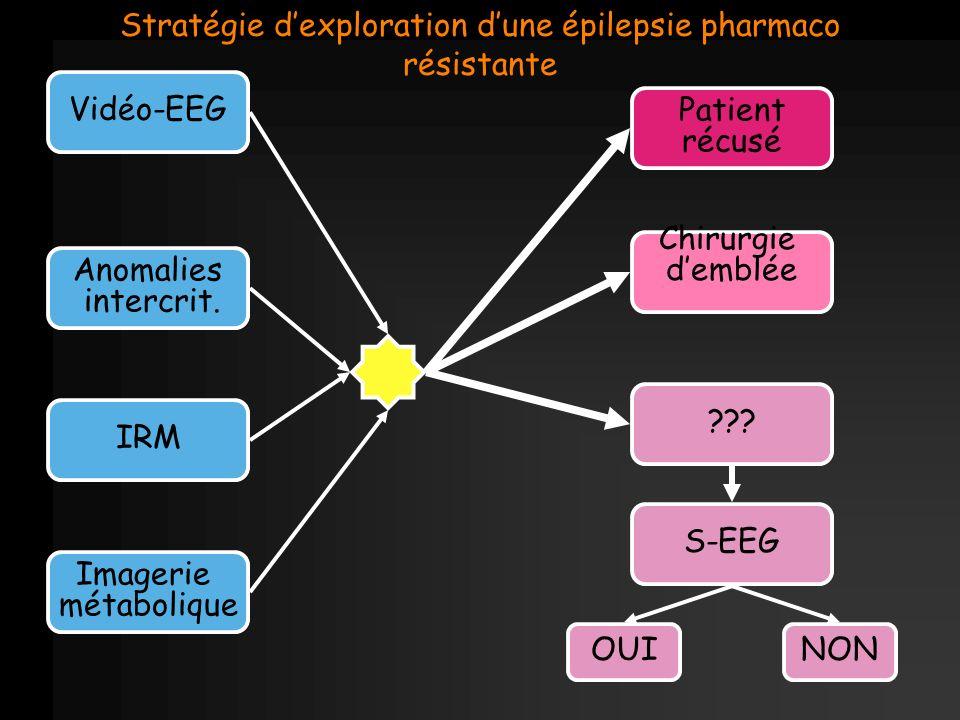 Stratégie d'exploration d'une épilepsie pharmaco résistante