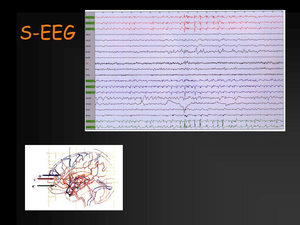 S-EEG