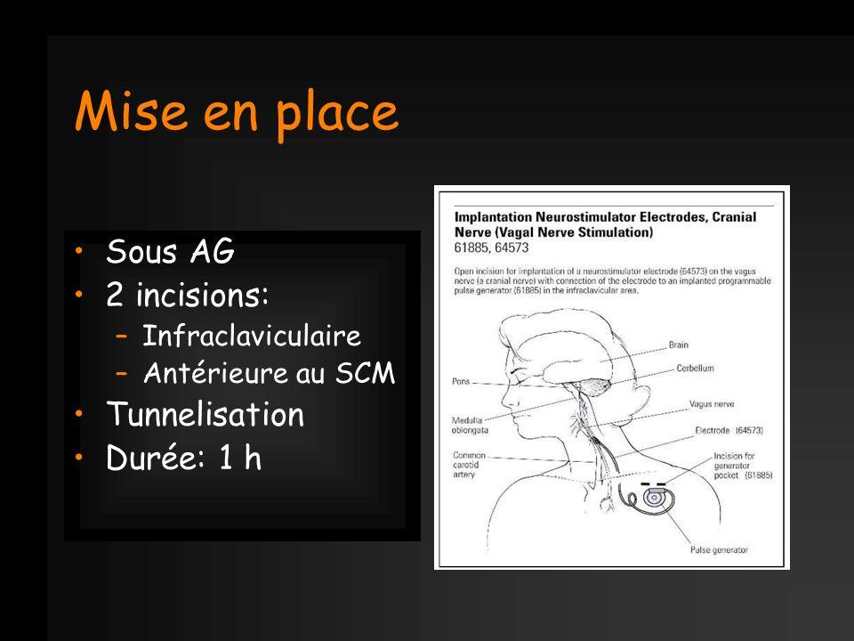 Mise en place Sous AG 2 incisions: Tunnelisation Durée: 1 h