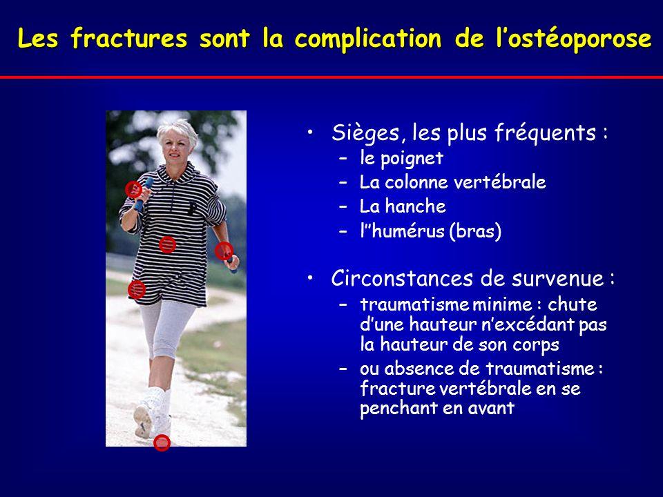 Les fractures sont la complication de l'ostéoporose