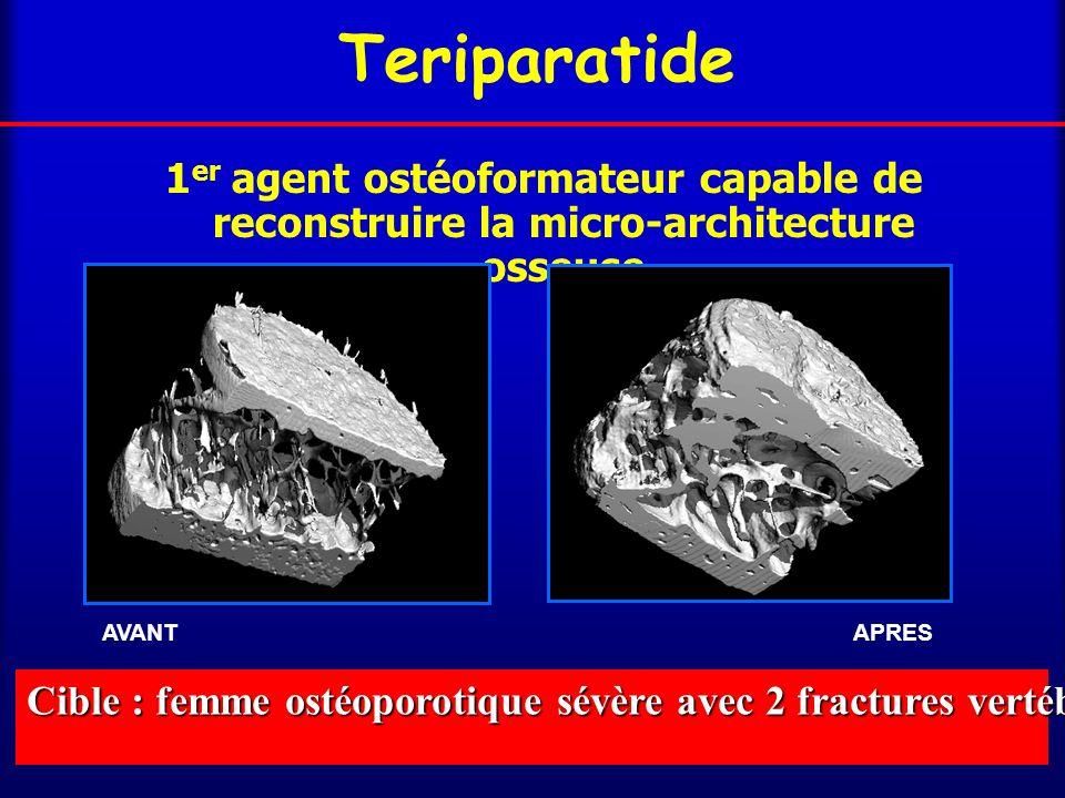 Teriparatide 1er agent ostéoformateur capable de reconstruire la micro-architecture osseuse. Le poids des mots – le choc des photos.