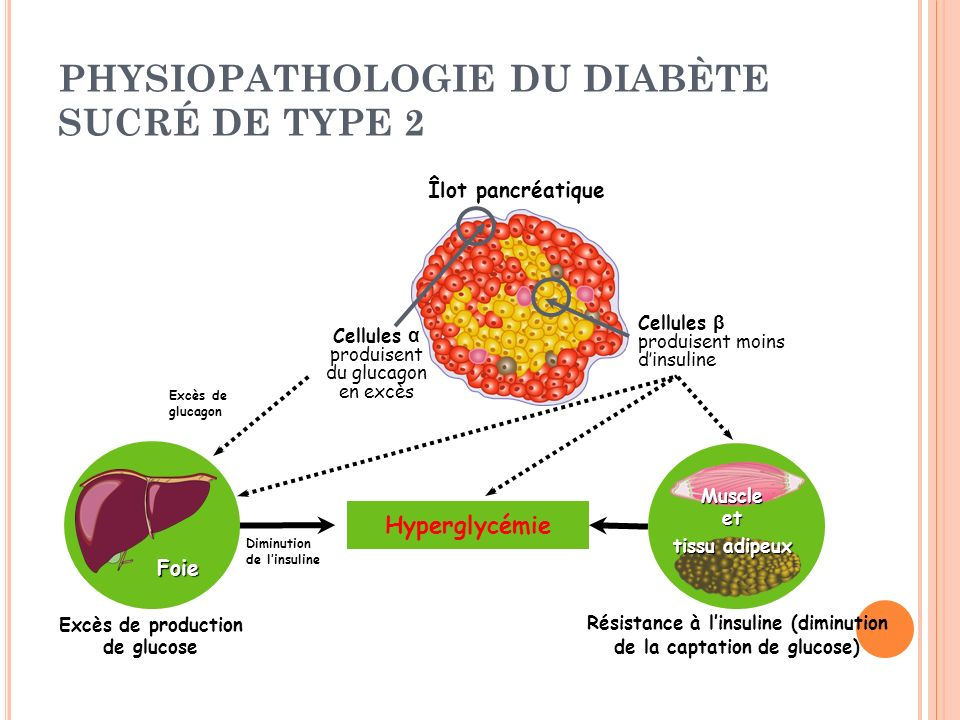 PHYSIOPATHOLOGIE DU DIABÈTE SUCRÉ DE TYPE 2