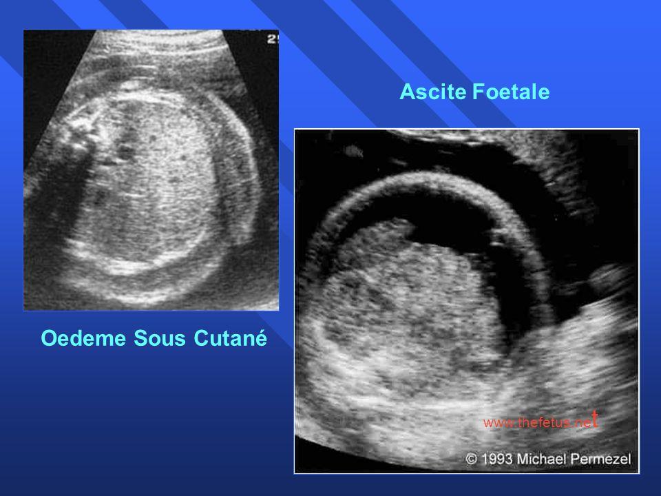 Ascite Foetale Oedeme Sous Cutané www.thefetus.net