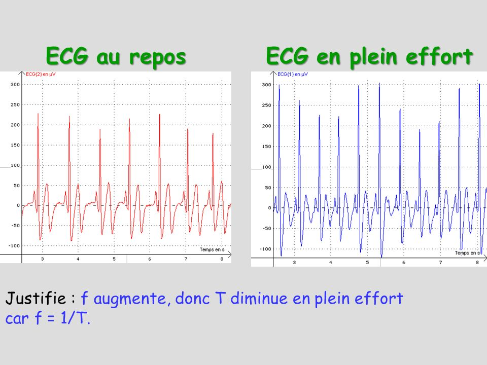 ECG au repos ECG en plein effort