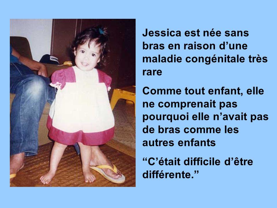 Jessica est née sans bras en raison d'une maladie congénitale très rare