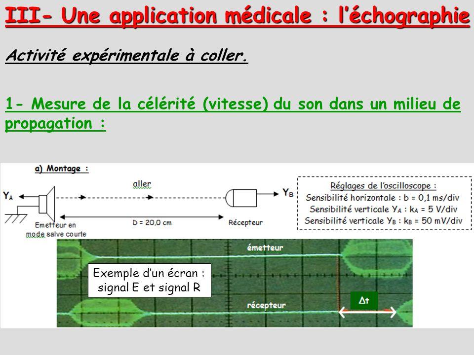 III- Une application médicale : l'échographie