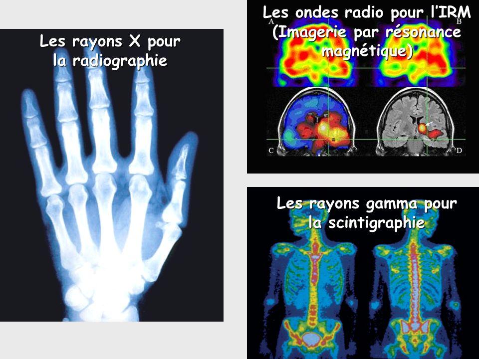 Les ondes radio pour l'IRM (Imagerie par résonance magnétique)
